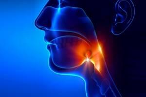 Можно ли курить при ангине тонзиллите, когда болит горло