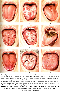 Как проявляются полипы на языке, ближе к горлу или под языком