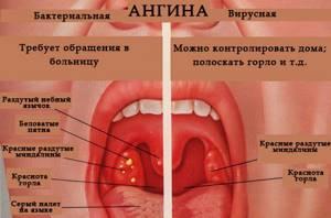 Первые признаки ангины как определить по симптомам