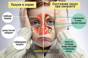 О чем говорит цвет соплей - что значат желтые, зеленые, белые выделения из носа