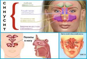 Компьютерная томография КТ околоносовых пазух и носа