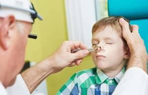 Синусит у ребенка: что это за болезнь и причины ее возникновения