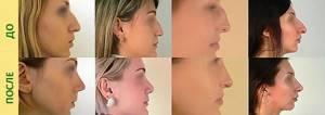 Крылья носа: лечение, разновидности пластики