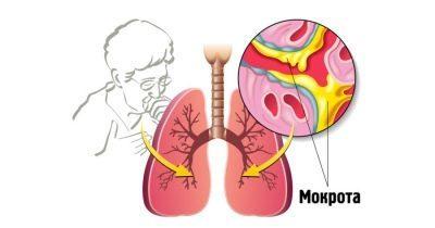 Сироп от кашля Стодаль инструкция по применению, аналоги лекарства