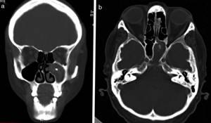 Рентген пазух носа при гайморите - описание патологии, проведение рентгена