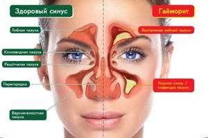 Мазь Симановского от гайморита для лечения носа: применение