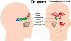 Почему из носа течет желтая жидкость при наклоне головы