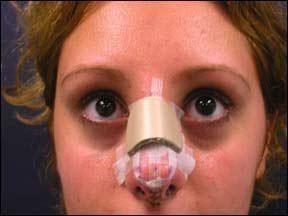 Виды операций носовой перегородки: разновидности септопластики