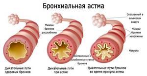 ЛФК при бронхиальной астме: задачи лечебной физкультуры