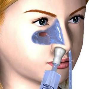 Как правильно промывать нос Аквалором взрослому и ребенку