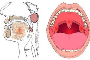 Симптомы и признаки рака горла - факторы риска и предраковые изменения
