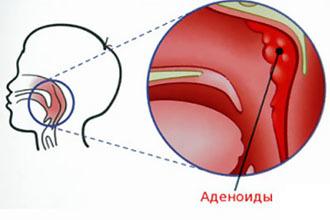 Адгезивный отит симптомы, лечение народными средствами