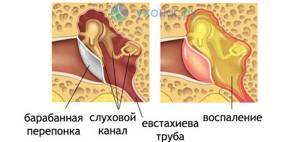 Лечение отомикоза уха. Симптомы, фото и диагностика ушного грибка