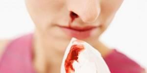 Как сделать, чтобы пошла кровь без боли самому себе