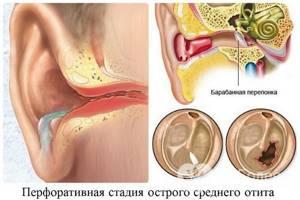 Отит - лечение у взрослых, причины и симптомы, диагностика, возможные осложнения и профилактика