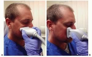 УЗИ пазух носа эхосинусоскопия что показывает и где сделать