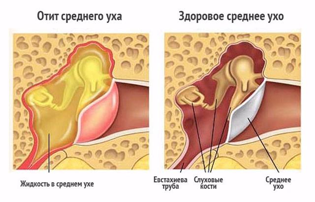 Экссудативный отит у ребенка лечение в домашних условиях