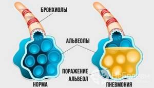 Крупозная пневмония - стадии и диагностика заболевания
