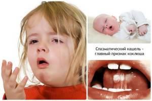 Коклюш у взрослых - как передается инфекция и методы лечения