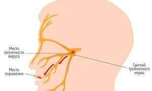 Герпес в горле у ребенка, как лечить лечение на миндалинах