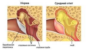 Хронический отит: симптомы, лечение, причины, стадии