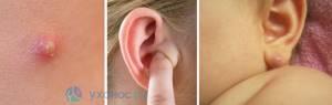 Фурункул в ухе что делать, лечение нарыва, симптомы, как лечить