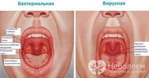 Хронический фарингит симптомы и лечение у взрослых с фото