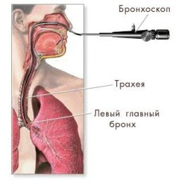 Рак трахеи как выглядит, фото, лечение, прогноз