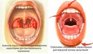 Чем лечить вирусную ангину - Всё об ангине