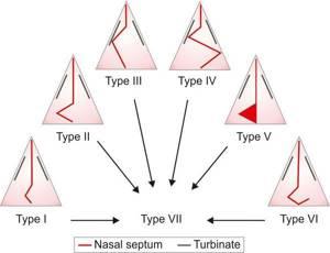 Искривление носовой перегородки причины, симптомы и лечение
