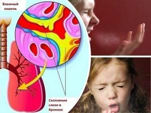 Комаровский кашель у ребенка без температуры чем лечить. Температура