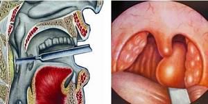 Заглоточный абсцесс фото, симптомы и лечение у взрослых и детей