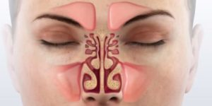 Постоянно заложен нос: лучшие домашние средства