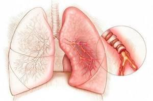 Как проявляется аллергический бронхит у взрослых: причины и факторы риска, формы заболевания, диагностика, лечение, возможные последствия и осложнения, прогноз и профилактика