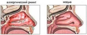 Хронический насморк - как вылечить хронический насморк