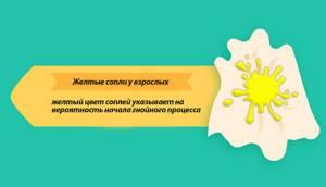 Ярко желтые сопли у взрослого причины и лечение заболевания