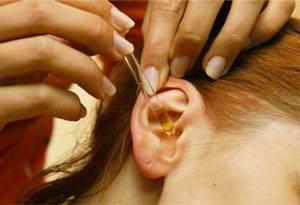 Почему шелушатся уши перхоть в ушах причины и лечение