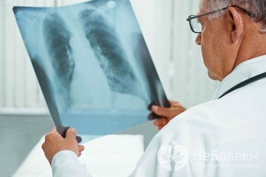 Очаговая пневмония - причины, симптомы, диагностика и лечение