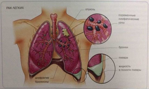 Боль в грудине посередине и кашель сухой, сопутствующие симптомы