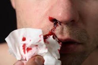 Выделения в виде соплей при гайморите из носа: способы лечения