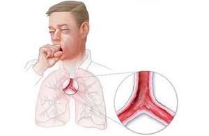 Трахеит и его основные симптомы: диагностика заболевания