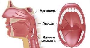 Опухают гланды миндалины что делать Лечение. Больно глотать