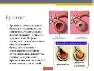 Умкалор - механизм действия, дозировка капель для детей и взрослых, противопоказания и отзывы