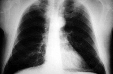 Что показывает рентген: преимущества методики