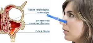 Гнойный гайморит причины, симптомы, лечение, осложнения и профилактика