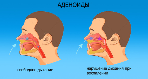 Почему заложена только одна ноздря и что с этим делать