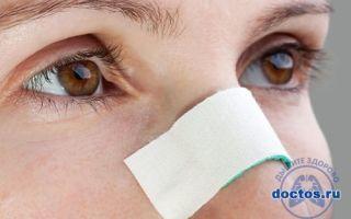 Признаки сломанного носа, как понять, что нос сломан
