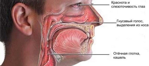 Гнойный ринит: диагностика, симптомы, причины, лечение