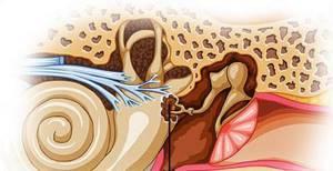 Болезни уха - причины, симптомы и лечение
