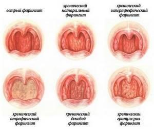 Кашель при фарингите - причины, виды, лечение